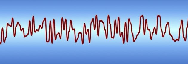 脳の電磁波データ